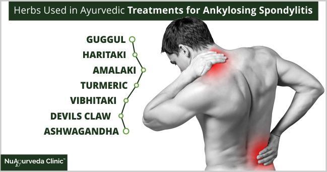 Ayurvedic ankylosing spondylitis treatment